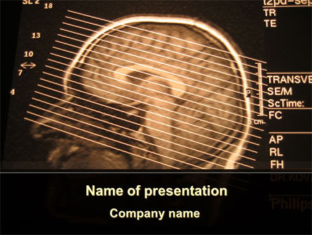 Brain Tomography Slice PowerPoint Template, 09785, Medical — PoweredTemplate.com