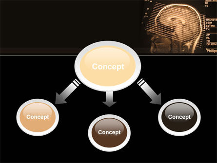 Brain Tomography Slice PowerPoint Template, Slide 4, 09785, Medical — PoweredTemplate.com