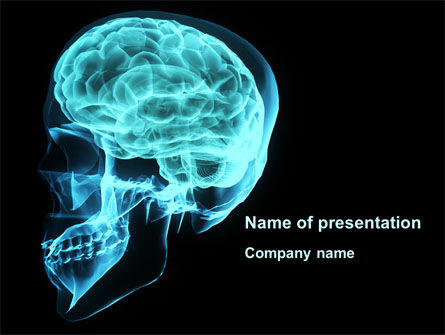 MRT Of Cranial Cavity PowerPoint Template, 09822, Medical — PoweredTemplate.com