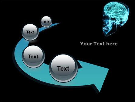 MRT Of Cranial Cavity PowerPoint Template Slide 6