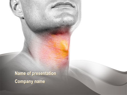 Diseases Of The Throat PowerPoint Template, 10005, Medical — PoweredTemplate.com