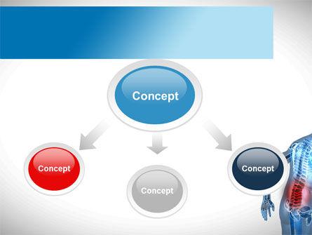 Lumbar Spine PowerPoint Template, Slide 4, 10035, Medical — PoweredTemplate.com