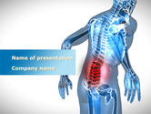 Medical: Lumbar Spine PowerPoint Template #10035