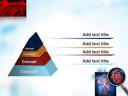 Cardiac Surgery PowerPoint Template Slide 12