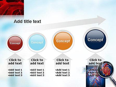 Cardiac Surgery PowerPoint Template Slide 13