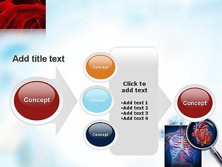 Cardiac Surgery PowerPoint Template Slide 17