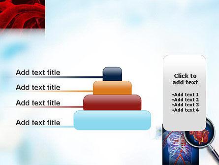 Cardiac Surgery PowerPoint Template Slide 8