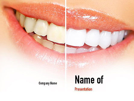 Teeth Whitening PowerPoint Template, 11036, Medical — PoweredTemplate.com