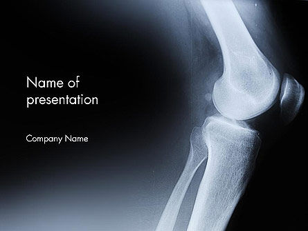 Medical: Joint Diseases PowerPoint Template #12278