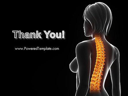 Female Spine Anatomy PowerPoint Template Slide 20