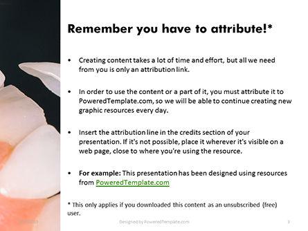 Dental Veneers Procedure Presentation, Slide 3, 15782, Medical — PoweredTemplate.com