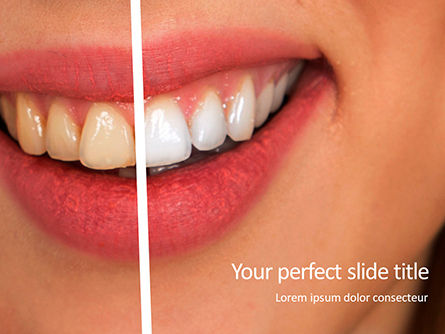 Medical: Woman teeth before and after whitening presentation Kostenlose PowerPoint Vorlage #16635